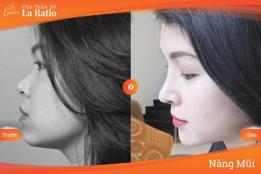 Nâng mũi sụn tự thân