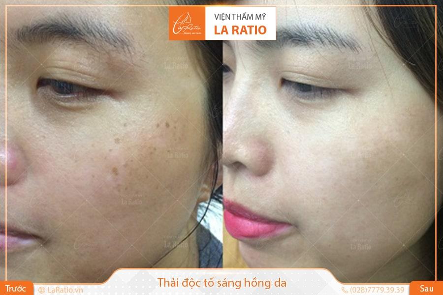 Tất cả các sản phẩm sử dụng tại La Ratio đều có nguồn gốc xuất xứ rõ ràng, đảm bảo quá trình chăm sóc da an toàn, hiệu quả