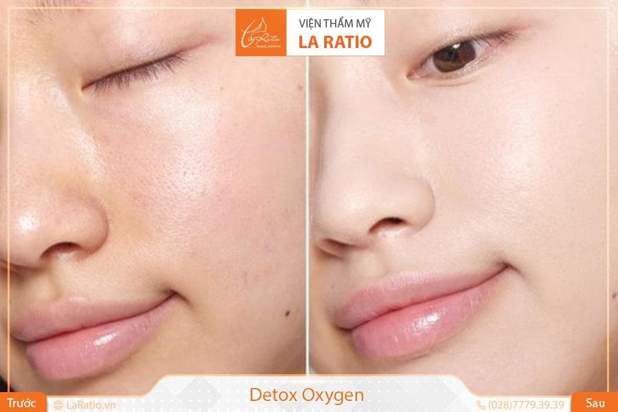 detox thải độc da