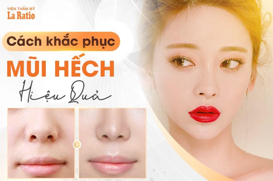khac phuc mui hech
