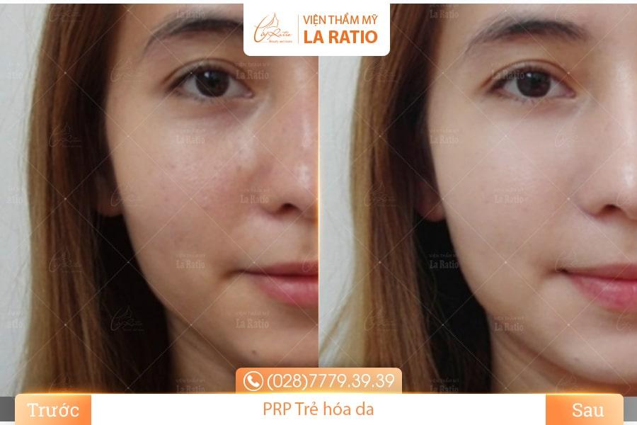 Tuân thủ theo các chế độ chăm sóc da sau khi cấy PRP để làn da đạt hiệu quả tốt nhất