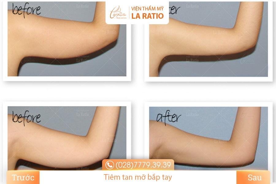 Bắp tay thon gọn nhanh chóng và an toàn nhờ tiêm tinh chất giảm béo Dr.Slim