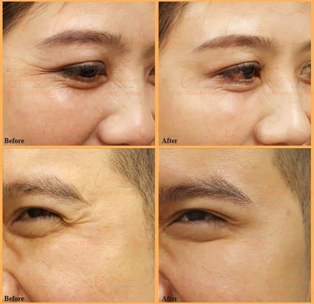 xóa nhăn mắt bằng botox