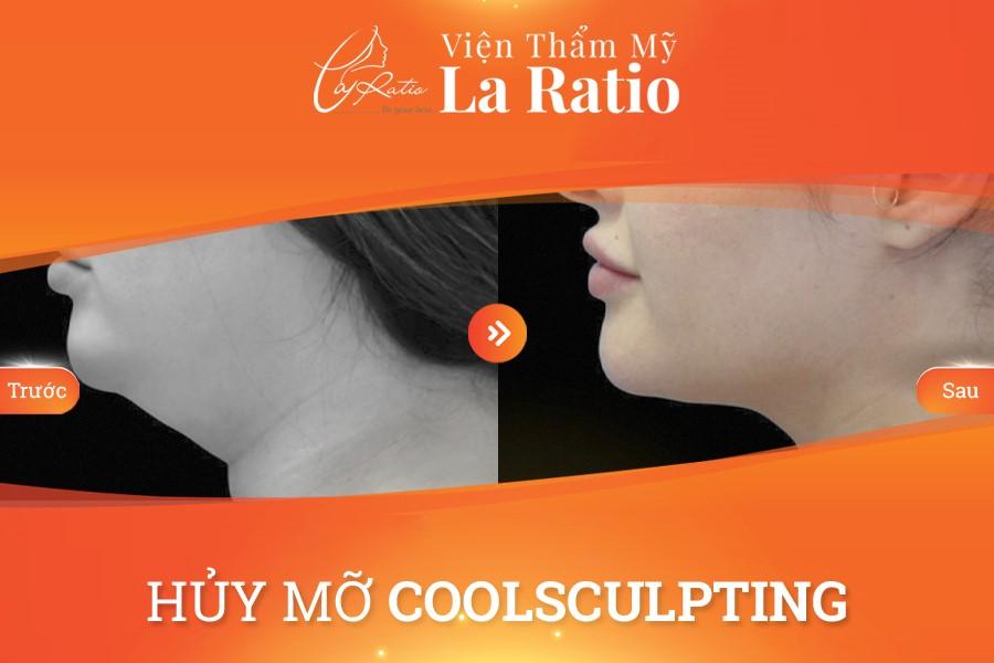 trước và sau thực hiện coolsculpting