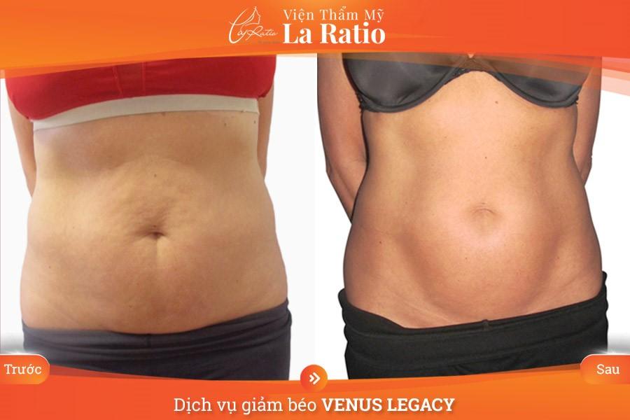 giảm béo venus legacy