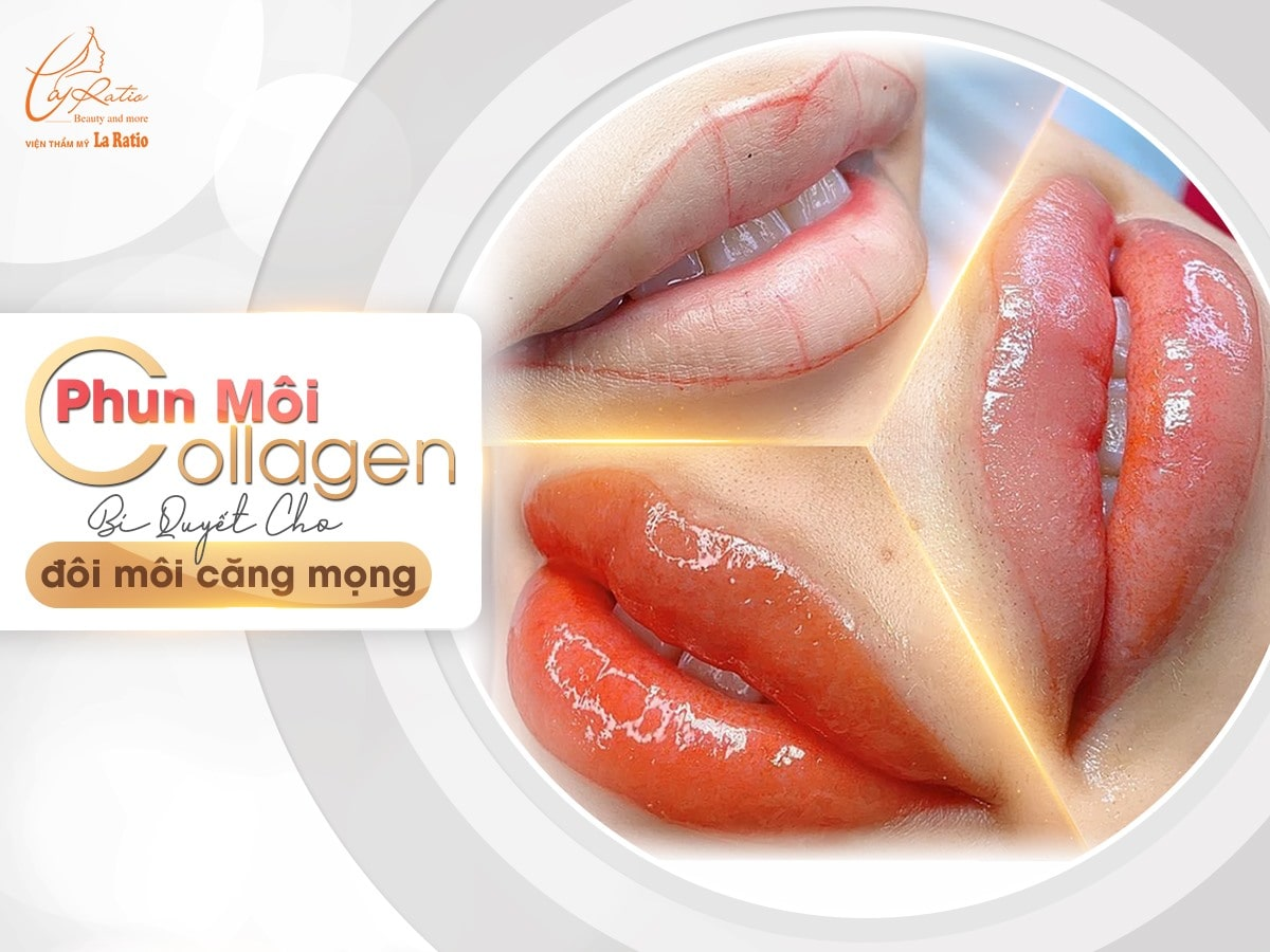 phun moi collagen