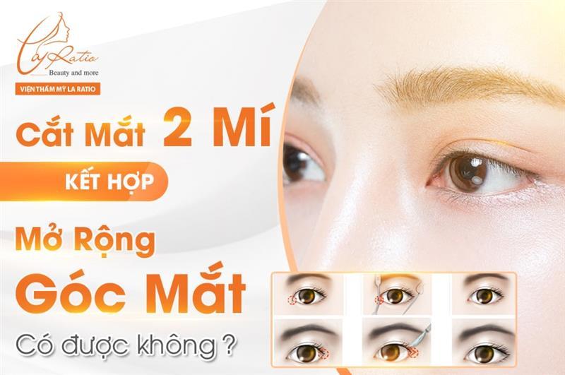 Cắt mắt 2 mí kết hợp mở rộng góc mắt có được không?