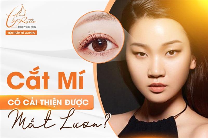 Cắt mí mắt có cải thiện được mắt lươn?