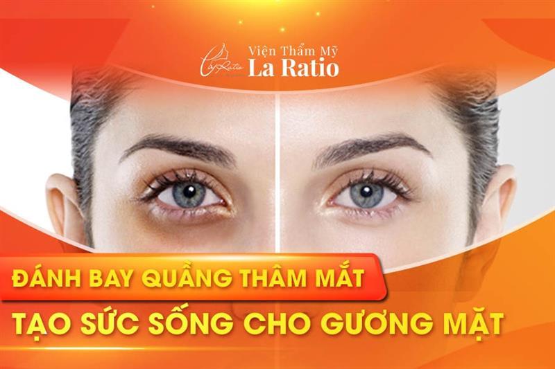 Những nguyên nhân gây thâm quầng mắt và cách khắc phục hiệu quả