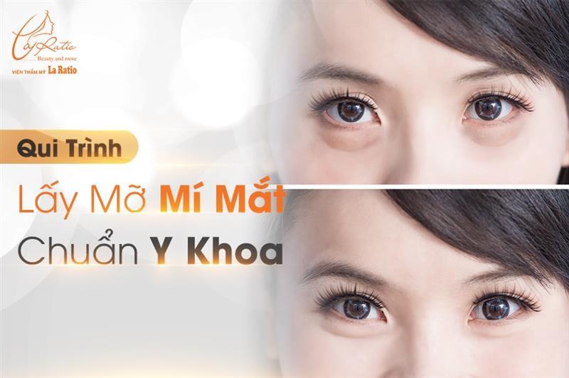 Thế nào là quy trình lấy mỡ mí mắt chuẩn y khoa?