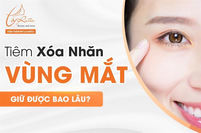 Tiêm xóa nhăn vùng mắt giữ được bao lâu?