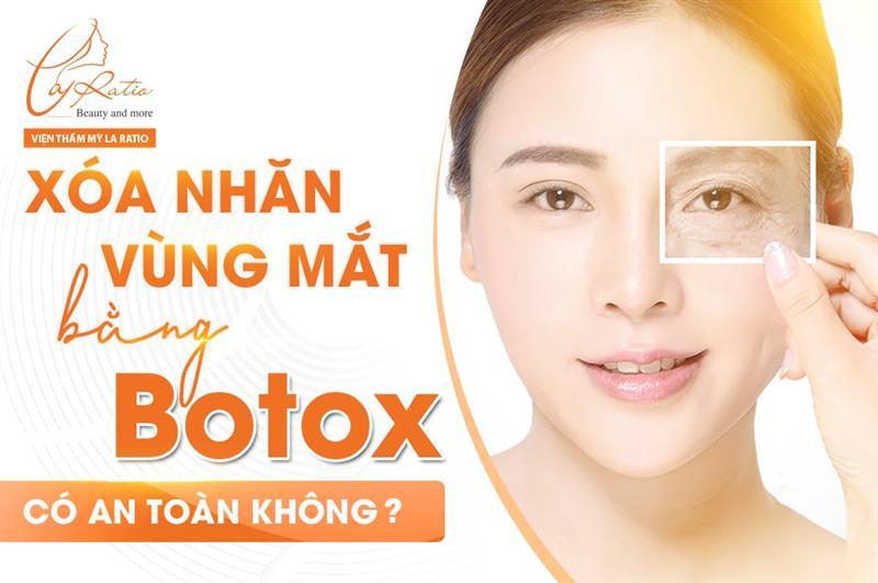 Xóa nhăn vùng mắt bằng botox có an toàn không?